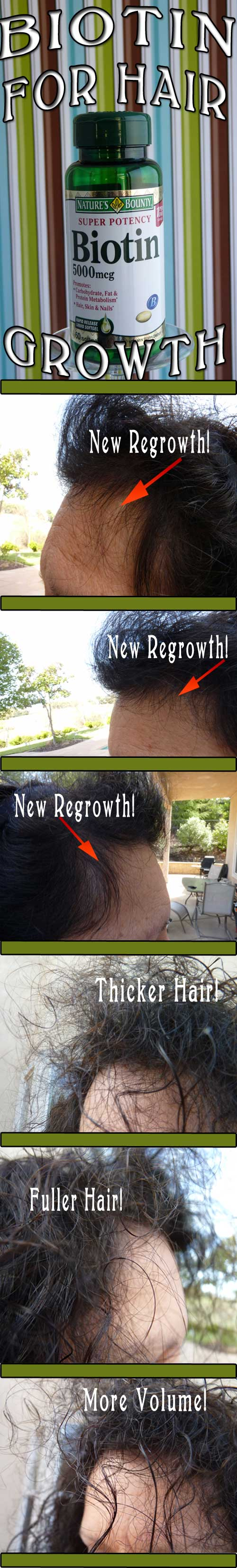 Biotin-For-For-Hair-Regrowth-#Biotin-#Hair-Regrowth