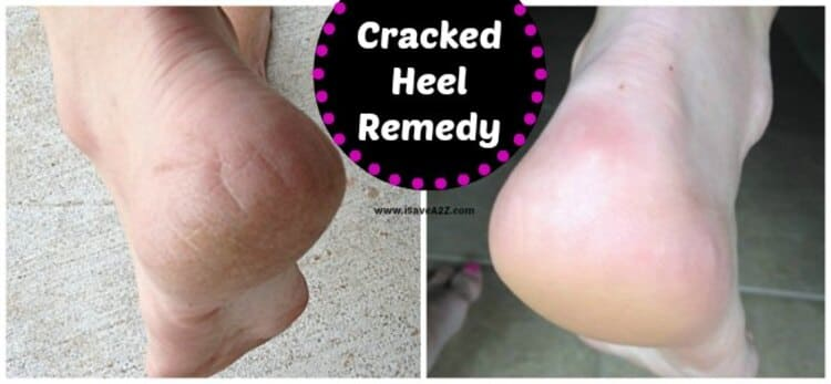 hydrogen peroxide cracked heels remedy a before and after photo