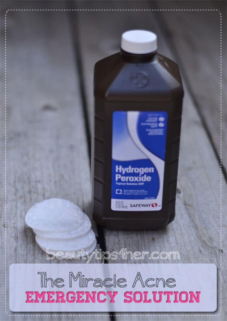 hydrogen peroxide acne treatment hydrogen peroxide bottle on a wooden surface